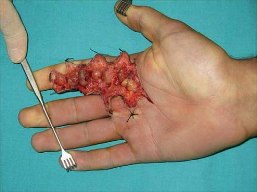 parmakta kemik tumoru belirtileri ve